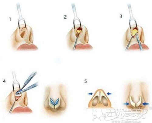 隆鼻手术的过程