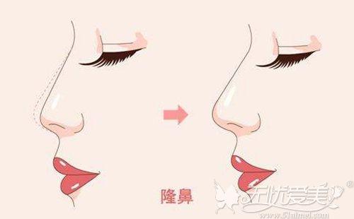 隆鼻手术的效果