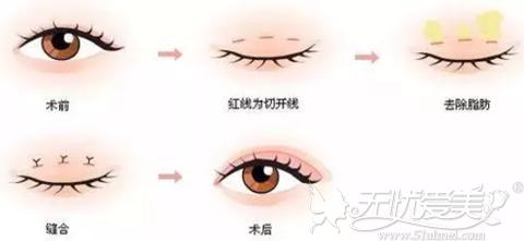 割双眼皮手术过程