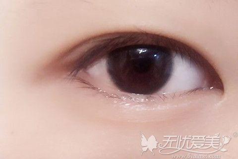 眼内双的形态