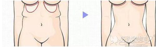 产后容易出现腹部下垂松弛