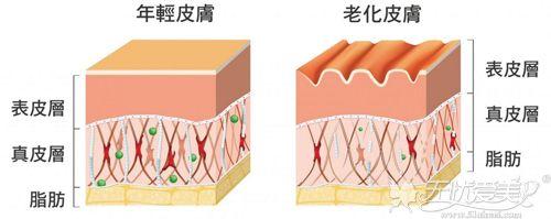 老化皮肤和年轻皮肤的对比