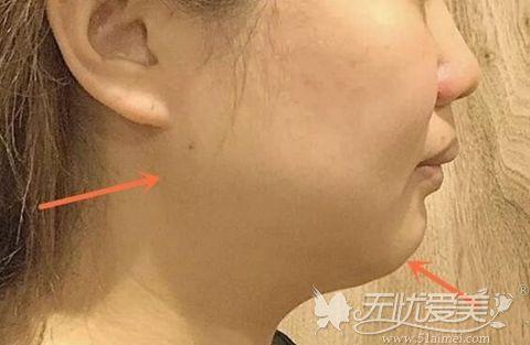 下颚线轮廓不清晰