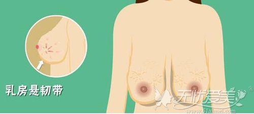 又垂又大的胸部可以做缩胸手术