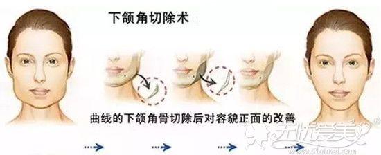下颌角手术过程