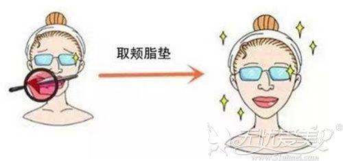 下颌角手术可能需要配合去颊脂垫