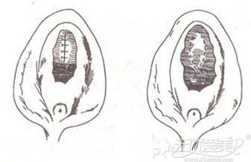 阴道紧缩手术的原理