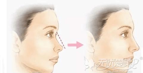 隆鼻手术改善你的不满意鼻型