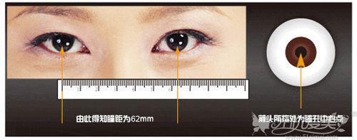 上下瞳距过宽会让眼综合效果变丑