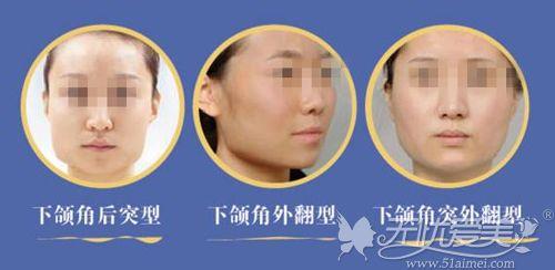 下颌角突出的各种状态