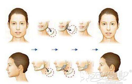 磨骨的手术原理