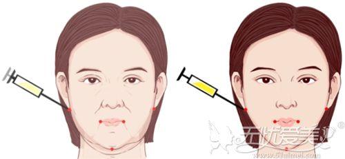 吸脂配合埋线提升可改善面部下垂