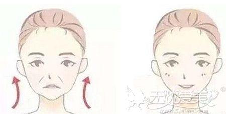 面部提升后脸为什么会变宽