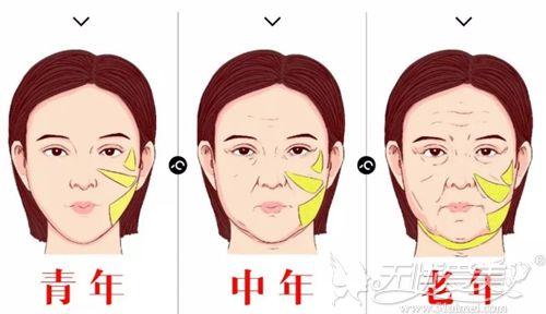 面部刷老的部位及过程