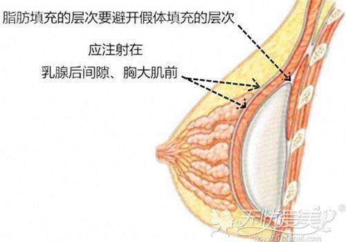 自体脂肪丰胸注射的位置