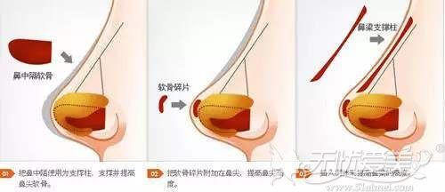 鼻综合放耳软骨和假体的位置