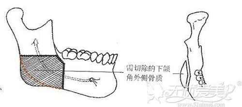 下颌角缩小术原理