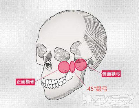 颧骨在面部的位置