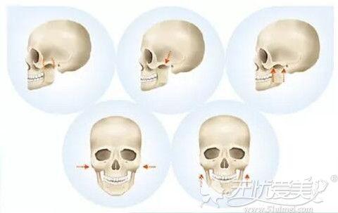 颧骨内推手术过程