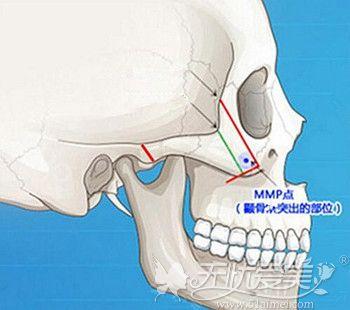 颧骨的所在位置和面部骨骼结构