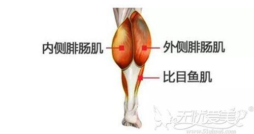 小腿肌肉发达的原因