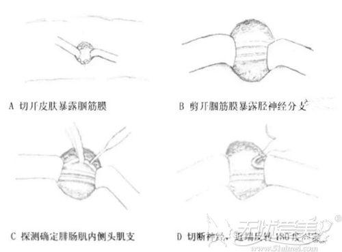 小腿神经阻断术原理