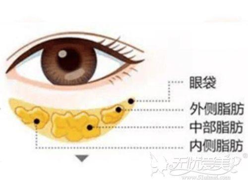 祛眼袋手术中去脂过多容易眼睛凹陷