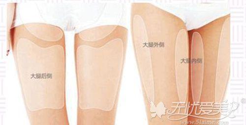 大腿吸脂的部位