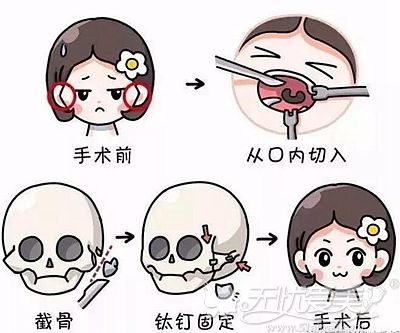颧骨内推的手术原理
