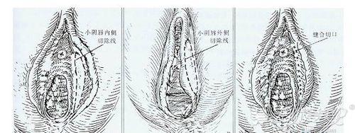 皮瓣法去肥厚阴唇方法