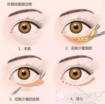 外切眼袋手术过程