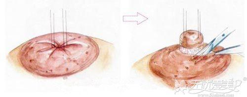 乳头内陷手术的疤痕位置