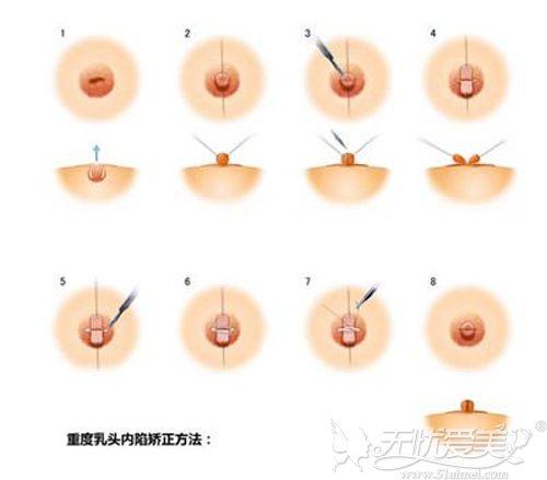 重度乳头内陷手术过程
