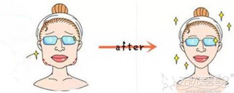 切下颌角整形手术脸型前后对比
