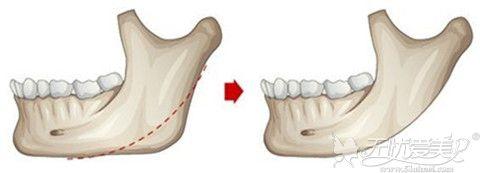 削下颌角整形手术