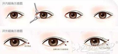 开内外眼角手术的原则