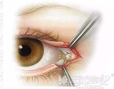 一定要适量开外眼角手术