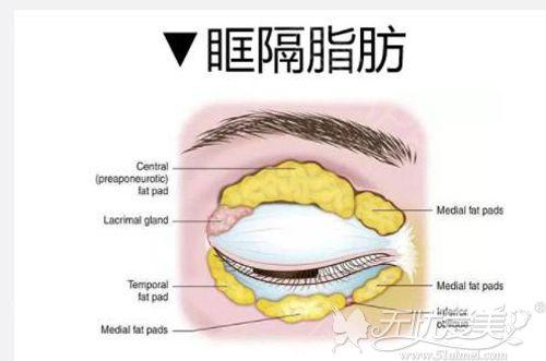 适合做双眼皮手术的最佳人群