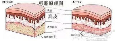 腰腹吸脂的手术原理