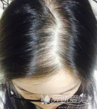头顶毛发稀疏怎么办