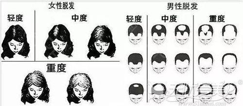 男女头顶稀疏的程度