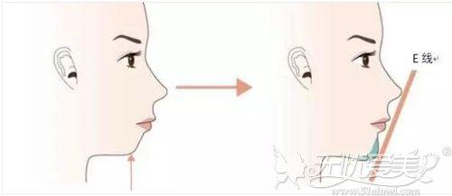 假体垫下巴改善后缩的效果