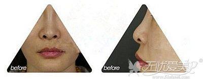 鼻翼缘后缩的表现和症状