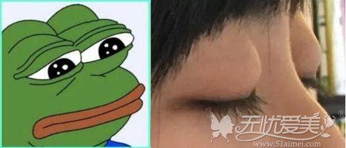 蛙系长相容易眼突