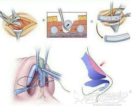 肋骨隆鼻出现弯曲是可以修复的