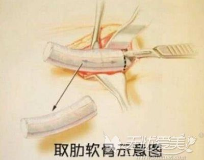 肋骨隆鼻的医生的雕刻技术很重要