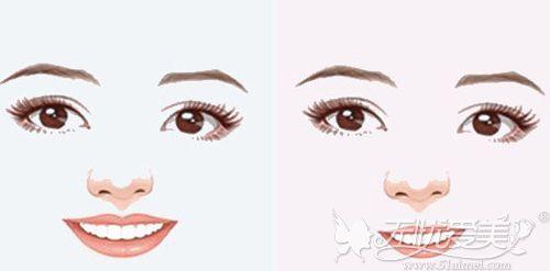 嘴巴大能整小前后示例图