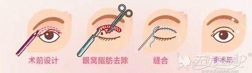 全切双眼皮手术过程