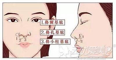 假体垫鼻基底的部位