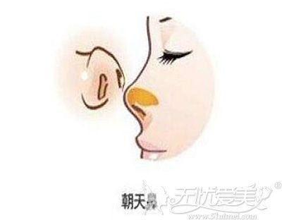 如何避免鼻基底填充后变成朝天鼻